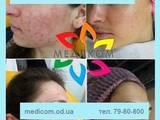 Здоров'я, краса,  Медичні послуги Дерматолог, ціна 150 Грн., Фото